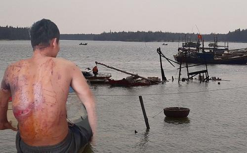 Một nạn nhân bị thương bên xác tàu